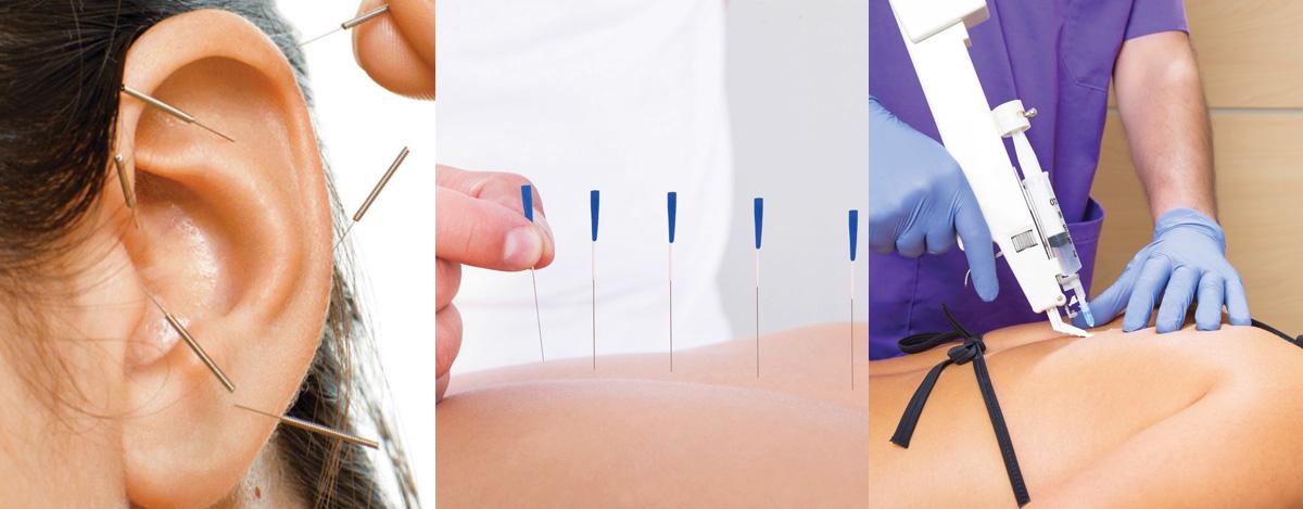 Nuove prestazioni mediche: Agopuntura, Auricoloterapia e Mesoterapia omeopatica